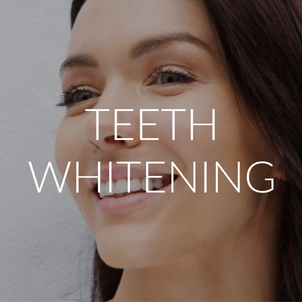 teeth whitening south surrey | Luxe Tanning + beauty bar